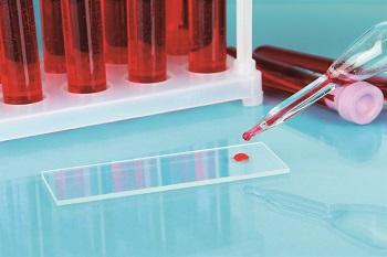 Диагностика анализа крови