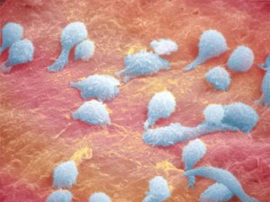 Лабораторная картина повышения моноцитов