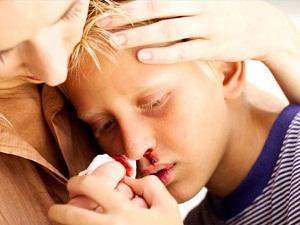 Показания к сдаче анализа - носовое кровотечение