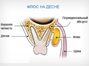 Схема флюса на десне
