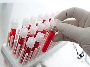 Анализ крови при судорогах