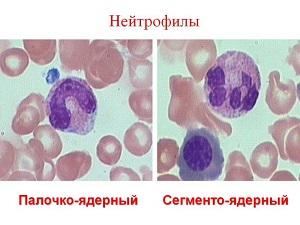 Нейтрофилы крови
