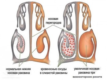 Схема ринита