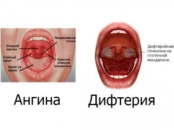 Ангина и дифтерия