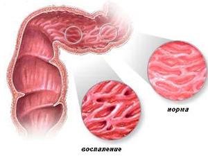 Болезнь Крона - противопоказание к приему Форлакса