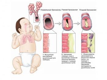 Бронхиолит у малышей