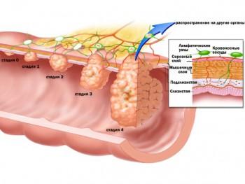 Полипы в кишечнике - причина кала с кровью