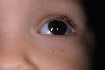 Проблема контагиозного моллюска у детей