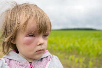 Проблема отека Квинке у детей
