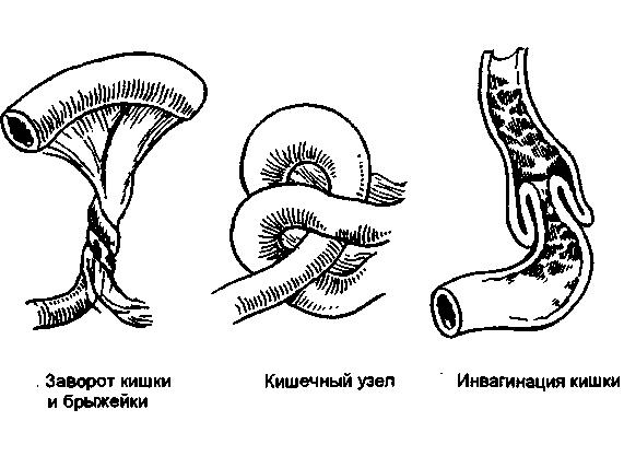 Виды кишечной непроходимости