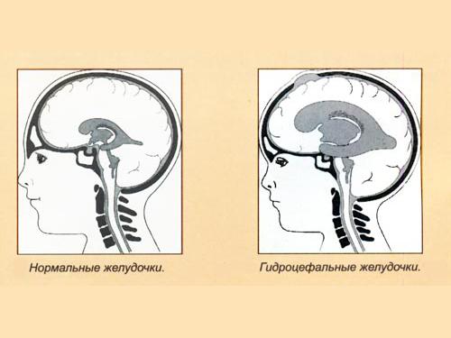 Желудочки при гидроцефалии