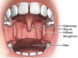 Воспаление аденоидов - причина насморка