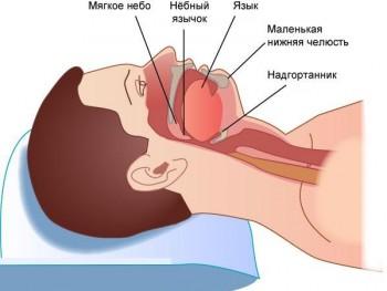 Схема сна при апноэ
