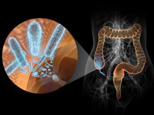 Воспаление аппендикса из-за попадания бактерий