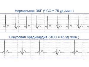ЭКГ при синусовой брадикардии