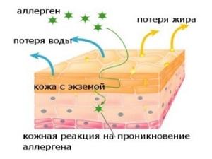 Схема аллергической экземы