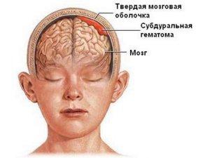 Гематома как причина появления шишки у новорожденных