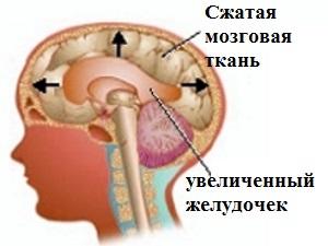 Гидроцефалия - показание к приему Энцефабола
