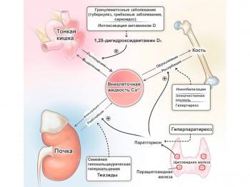 Гиперкальциемия