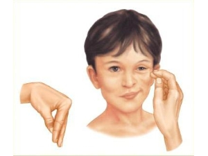 Симптомы Хвостека