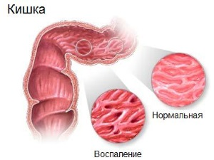Аллергический колит - причина повышения лейкоцитов в кале