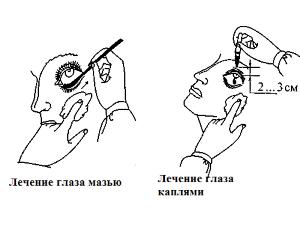 Способы применения мазей и каплей для глаз