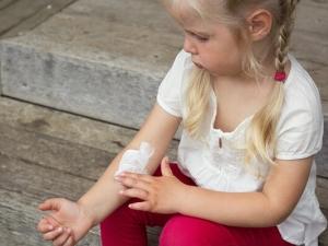 Лечение микроспории мазями и кремами