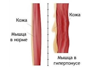 Мышца в гипертонусе и в норме