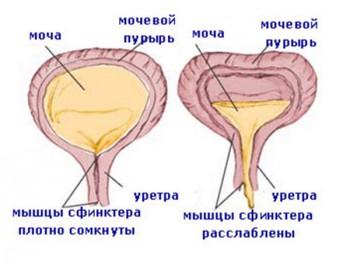Схема гиперактивного мочевого пузыря