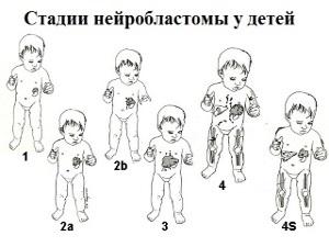 Стадии нейробластомы у детей