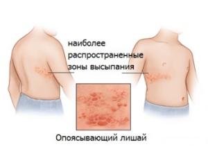 Лишай при повышенном уровне лимфоцитов