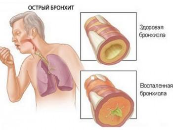 Бронхит - следствие разросшихся аденоидов