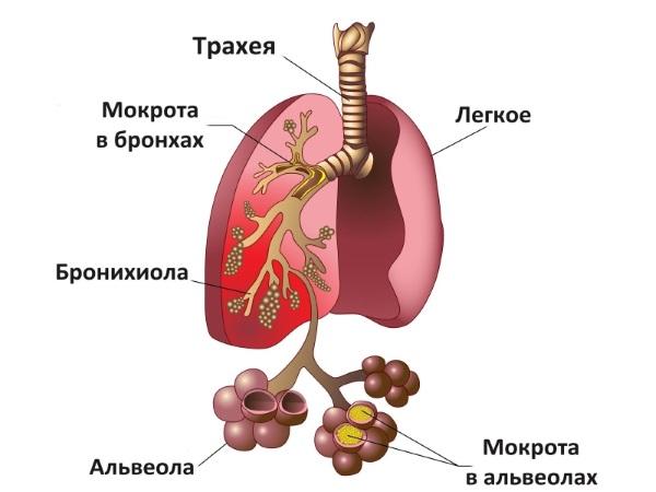 Польза Амоксиклава при пневмонии