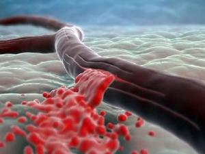 Элькар для восстановления при потере крови
