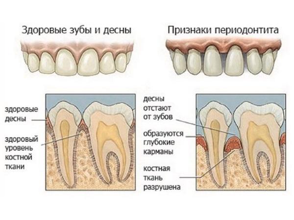 Периодонтит - причина появления свища на десне