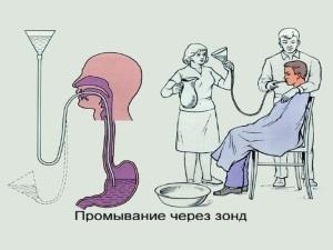 Промывание желудка через зонд в положении сидя