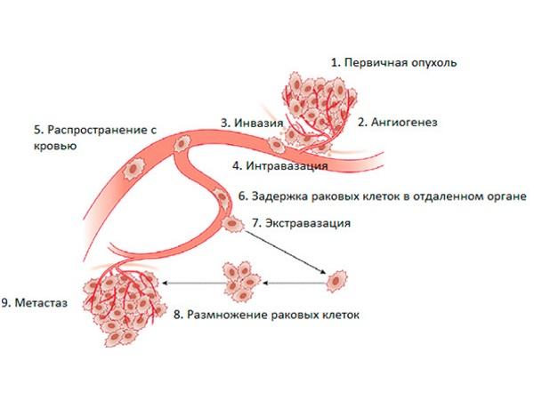 Схема распространения метастаз