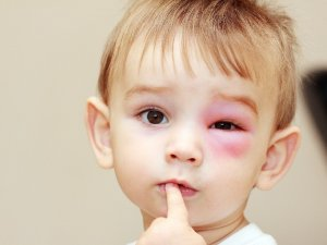 Необходимость подсчета тромбоцитов при частом появлении синяков