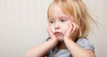 Проблема сыпи у ребенка