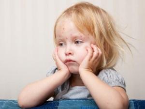 Сыпь - осложнение после прививки