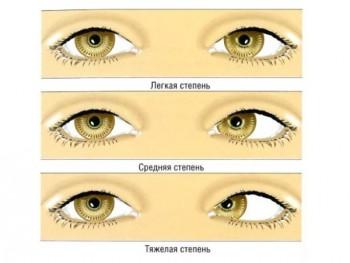 Польза упражнений для глаз при косоглазии