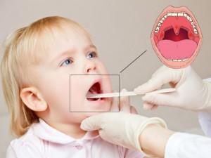 Спрей при воспалении горла у детей